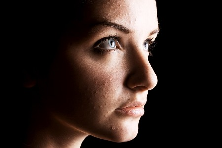 In My Face! Dealing With Acne (and Other Skin Conditions) 1